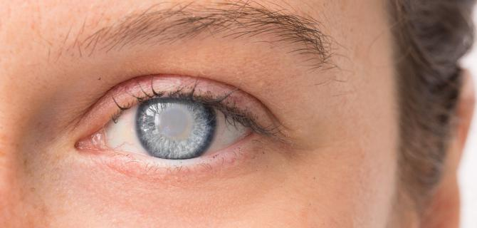 c-thumbnail of Looking Through a Cataract Is Similar to a Frosty Window