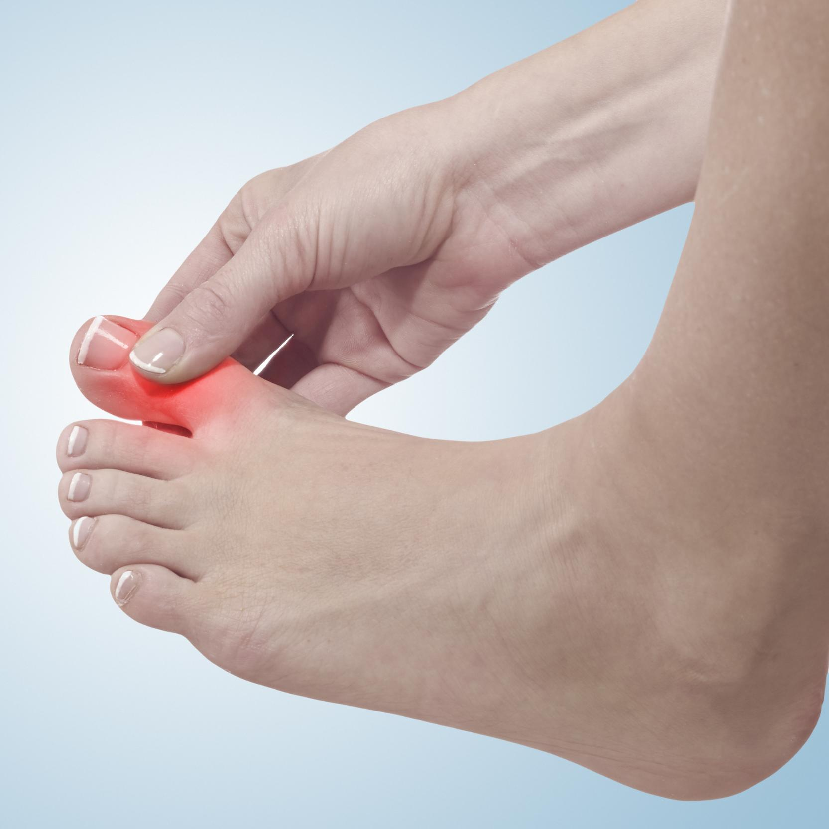 banner of Gout Is One of the Most Painful Forms of Arthritis