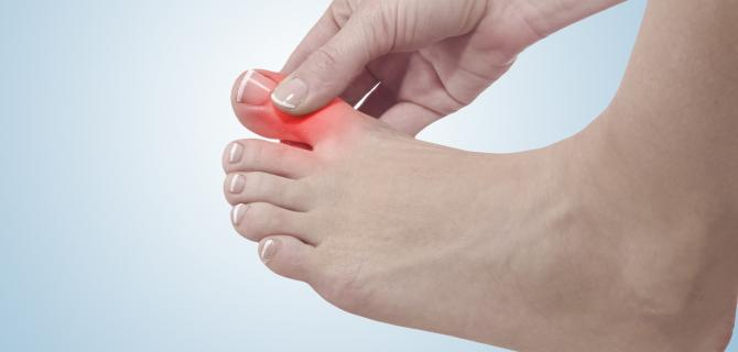 c-thumbnail of Gout Is One of the Most Painful Forms of Arthritis