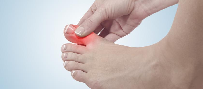 main of Gout Is One of the Most Painful Forms of Arthritis