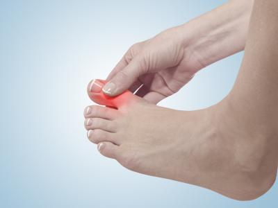 thumbnail of Gout Is One of the Most Painful Forms of Arthritis