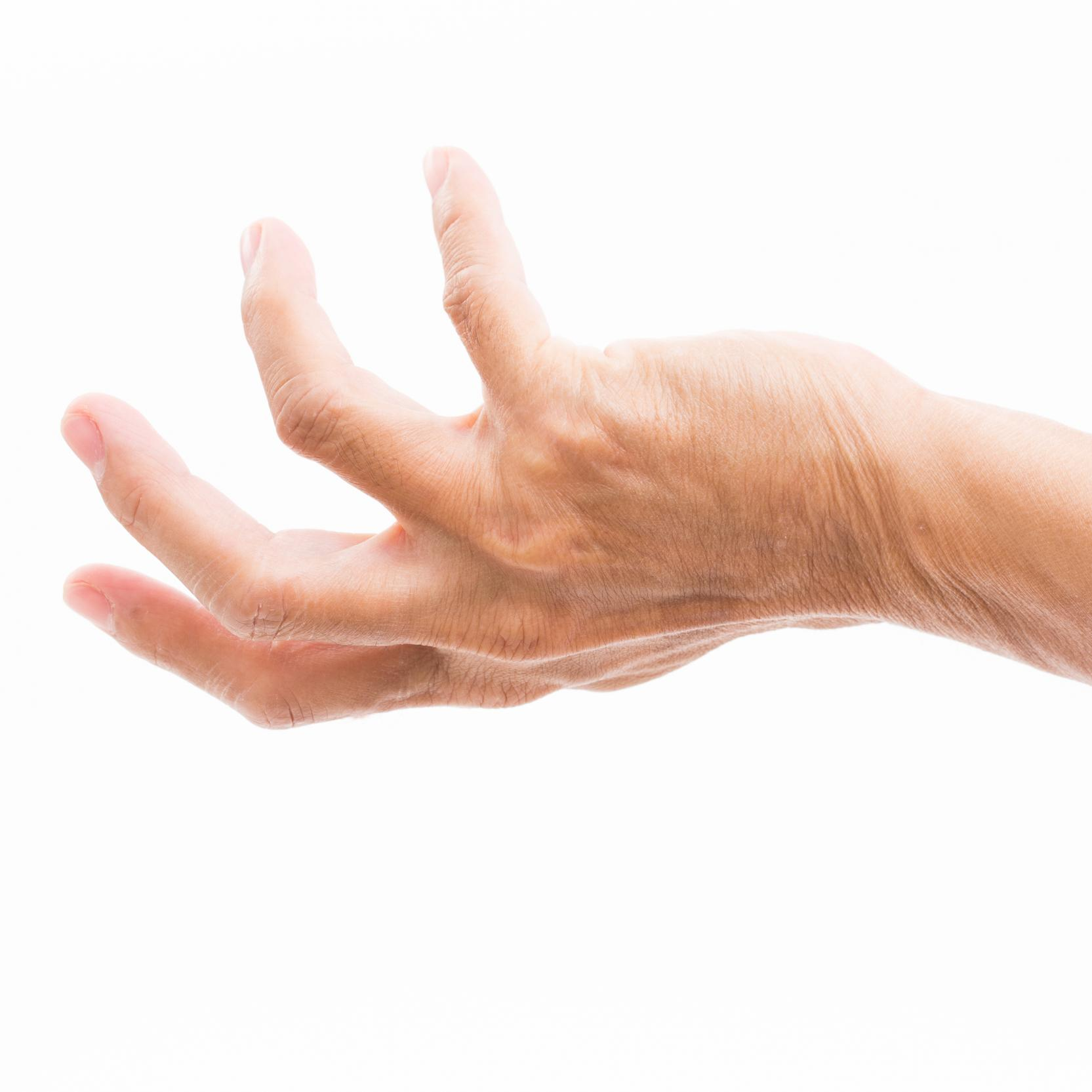 banner of A Grasping Hand Deformity Could be Dupuytren\