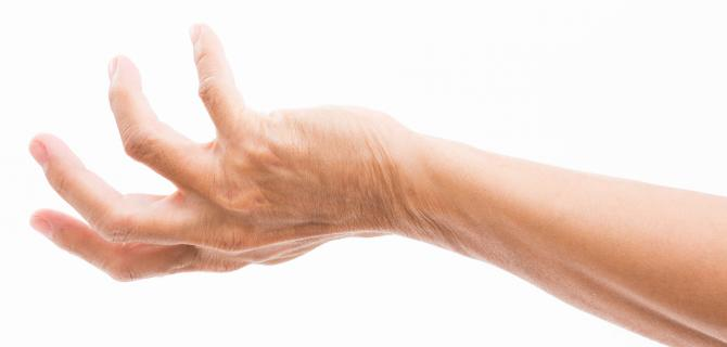 c-thumbnail of A Grasping Hand Deformity Could be Dupuytren