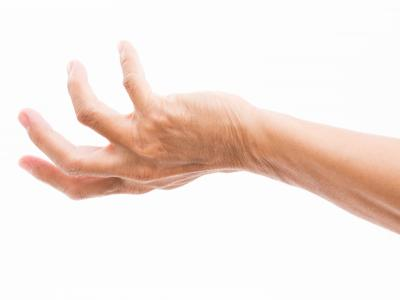 thumbnail of A Grasping Hand Deformity Could be Dupuytren's Contracture
