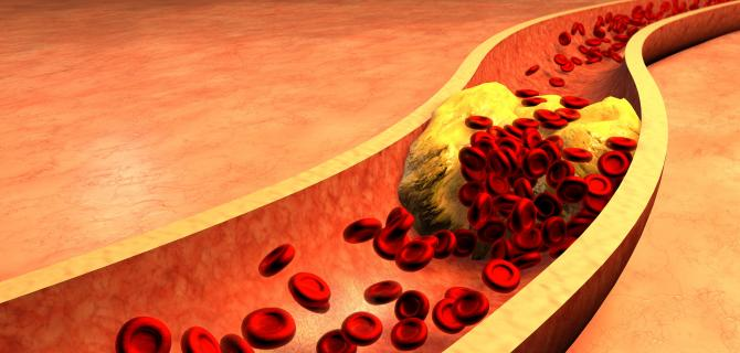 thumbnail of Cholesterol Is Still One of the most Misunderstood Aspects of Health
