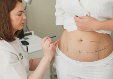 thumbnail of Considering Liposuction or an Abdominoplasty? What You Should Know
