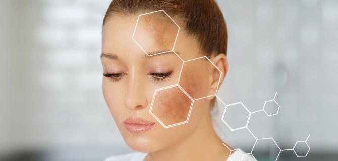 c-thumbnail of Those With Hyperpigmentation Can See Patches of Skin Alter Color