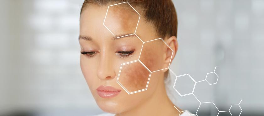 main of Those With Hyperpigmentation Can See Patches of Skin Alter Color