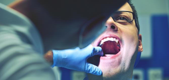 c-thumbnail of Oral Cancer Can Occur In a Variety of Locations Within the Mouth