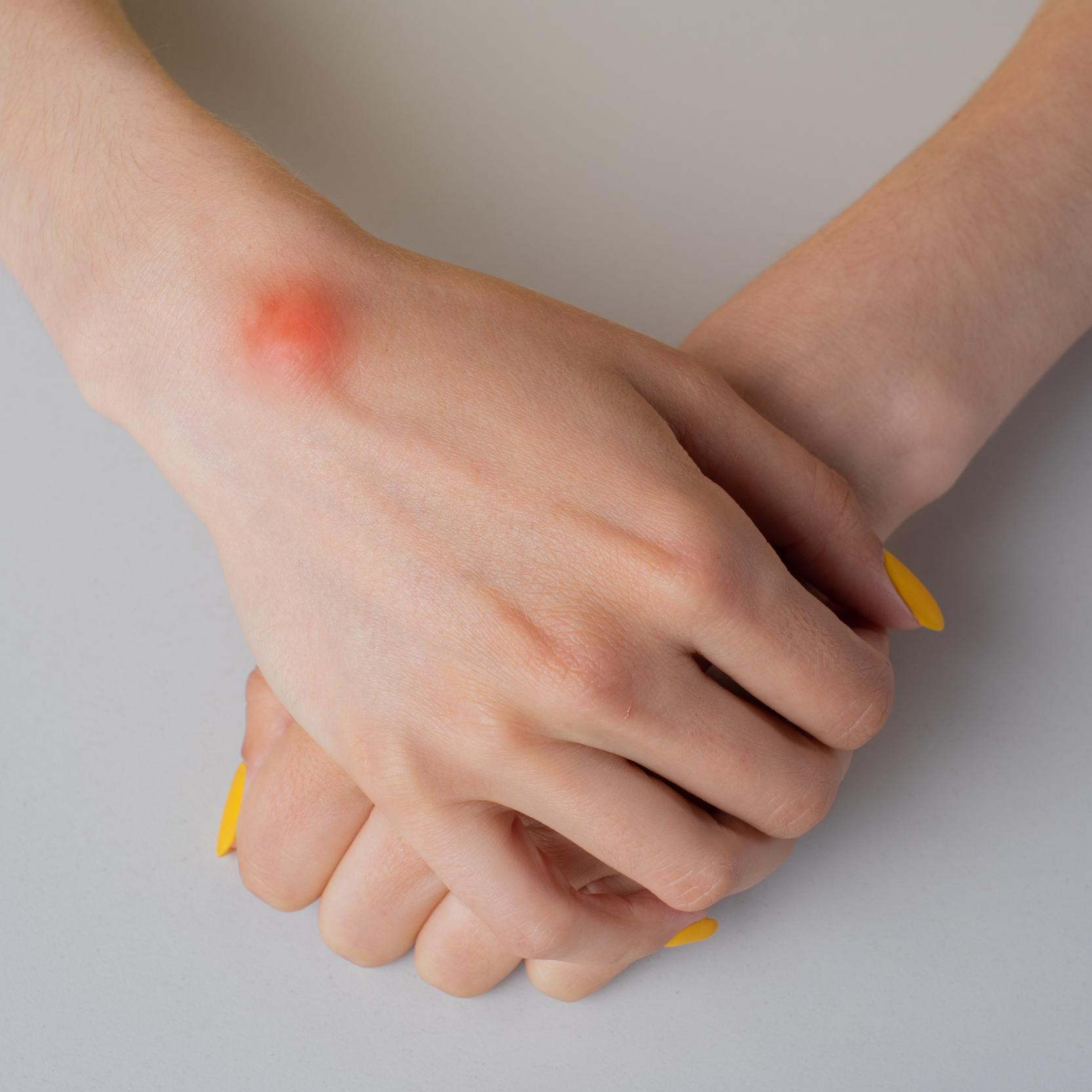 banner of Wrists and Hands Tend to Be Targets for Ganglion Cysts (healthychoice)