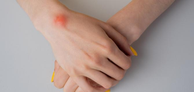 c-thumbnail of Wrists and Hands Tend to Be Targets for Ganglion Cysts (healthychoice)