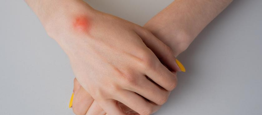 main of Wrists and Hands Tend to Be Targets for Ganglion Cysts (healthychoice)